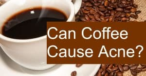 Is coffee the reason you have Acne?